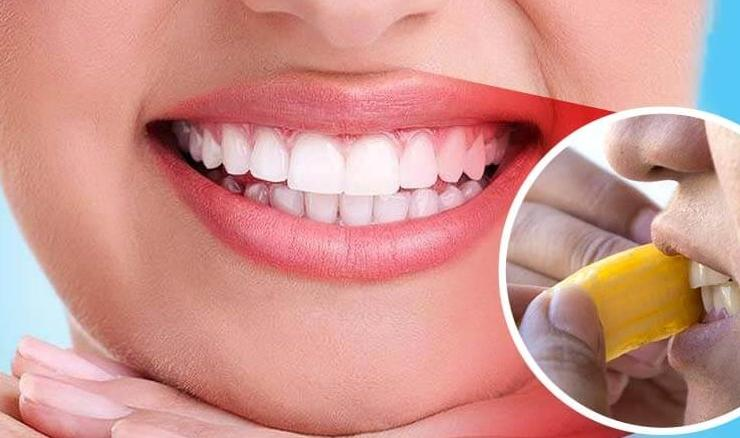 How-to-Whiten-Teeth-with-Banana-Peel