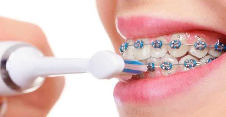 Can-You-Use-an-Electric-Toothbrush-with-Braces